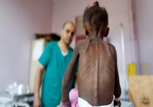 Yemen'de 20 milyon insan aç!