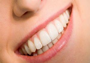 Işte Diş Beyazlatmanın 5 Püf Noktası Güncel Haberler Son