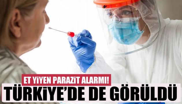 Et yiyen parazit Türkiye'de de görüldü